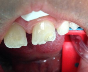 Anterior Chipped tooth Fixed, no anesthetic needed!