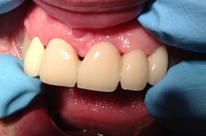 Anterior Bridge Fixed